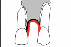 1. GRAFTING UNDER THIN GUM REQUIRES SANDWICH GRAFT