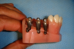 3 implants to replace 3 missing teeth. Abutments have been placed on the implants.
