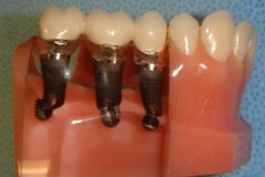 3 implant bridge. The bridge is cemented or screwed ontot he exposed abutments. 3 separate implant crowns could also be made if the bone is of good qua