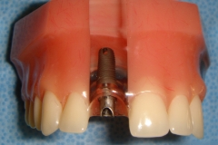SIngle Tooth Replacement for Missing Incisor. Note the implant and extending abutment. The crown fits over the exposed abutment.
