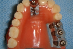 Upper incisor implant and 3 implants to replace to 3 upper teeth.  The crowns have not yet been placed.