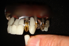 THERE ARE 3 PARTS TO A FINAL IMPLANT RESTORATION. CROWN ABUTMENT IMPLANT