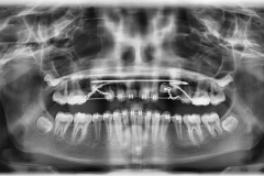1. MULTIPLE IMPACTED TEETH ARE EXPOSED. SEE THE CHAINS
