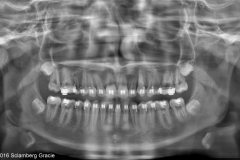 2. TEETH ARE PAINLESSLY PULLED OVER MONTHS INTO THE RIGHT PLACE
