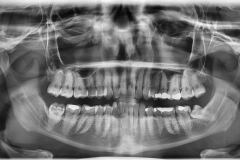 LOWER WISDOM TEETH 3rd molar rigth and left ARE TYPICALLY CLOSE TO THE NERVES IN THE JAW black linear shadow