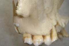 SKULL SHOWING IMPACTED WISDOM TOOTH POKING THROUGH