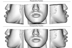 1. PREOPERATIVE LARGE LOWER JAW AND SIMULATED POSTOPERATIVE PLAN 2