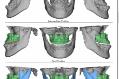 2. SURGERIES PERFORMED INCLUDE UPPER JAW ADVANCEMENT AND LOWER JAW SETBACK
