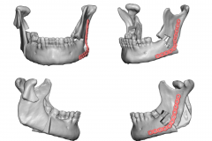 JAW SURGERY ORTHOGNATHIC SURGERY
