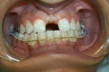 AS THE APPLIANCE IS ACTIVATED A SPACE DEVELOPS BETWEEN THE FRONT TEETH