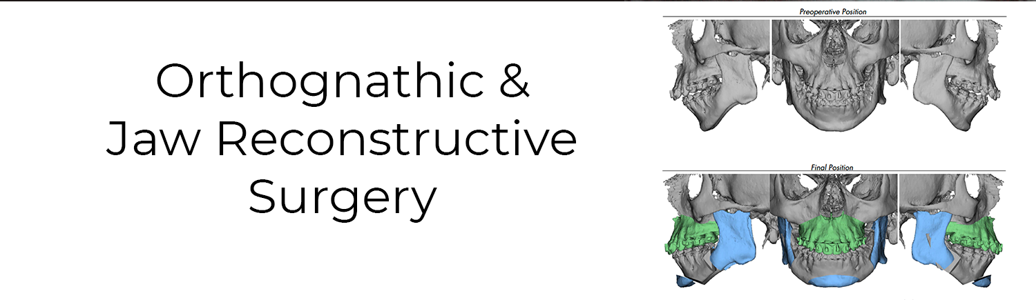 orthognathic & jaw reconstructive surgery